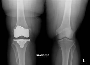 Hip Replacement Surgery - McNeil Orthopedics - Dr. Stephen McNeil - joint replacement