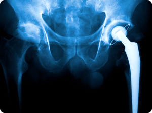 Joint Replacement - McNeil Orthopedics